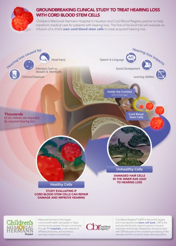 Of Cord Blood Stem Cells Treat Hearing Loss Visual.ly