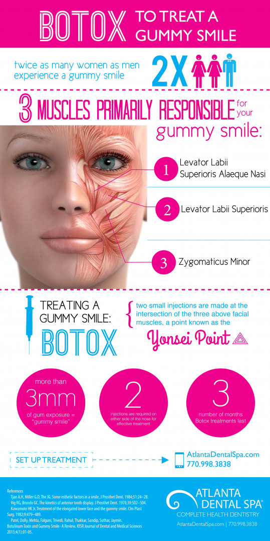 Treat a Gummy Smile with Botox