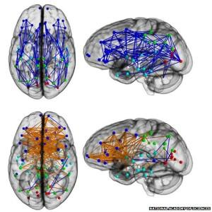 msh brain wiring diagram notes on guitar strings female diagrams study the brains of men and women are different with a few major