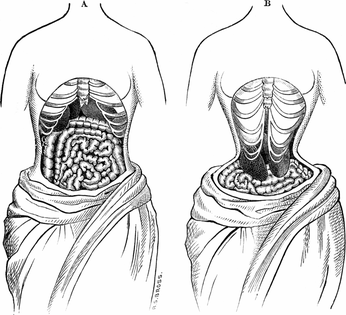 Here's How Corsets Deformed The Skeletons Of Victorian Women