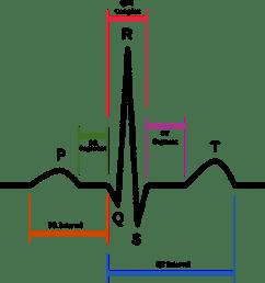 normal human cardiac rhythm on ekg [ 960 x 947 Pixel ]