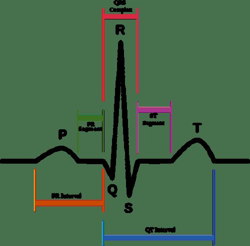 small resolution of normal human cardiac rhythm on ekg