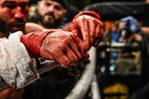 Why Bare Knuckle Fighting Championship Is Ready To Follow In UFC's ...