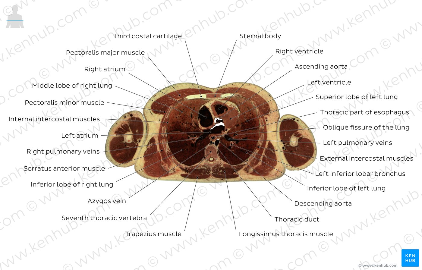 billroth 1 diagram 2004 gmc yukon bose radio wiring enchanting thoracic vertebra pattern physiology of human