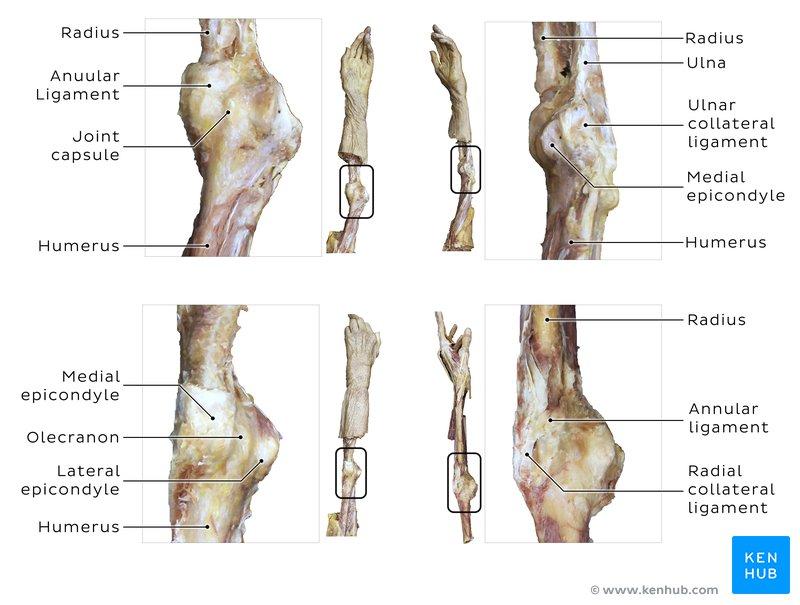 Brachial artery injury - Clinical case, anatomy, causes ...
