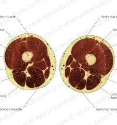 gracilis muscle level overview [ 1400 x 896 Pixel ]
