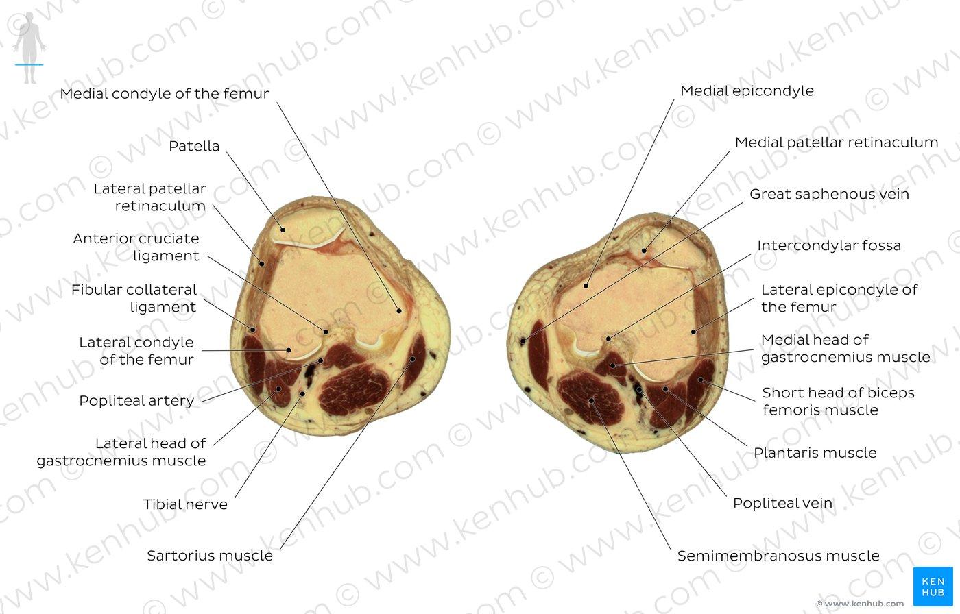 hight resolution of atlas patella level