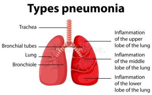 Diagram Showing Types Pneumonia Stock Vector  Image: 73941638