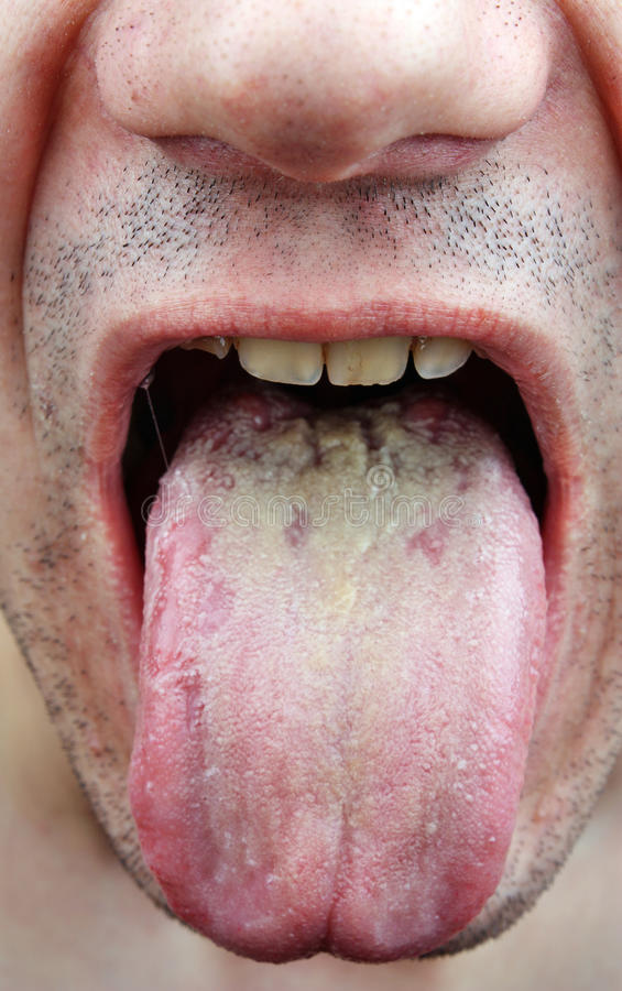 Tongue Fungus Infection
