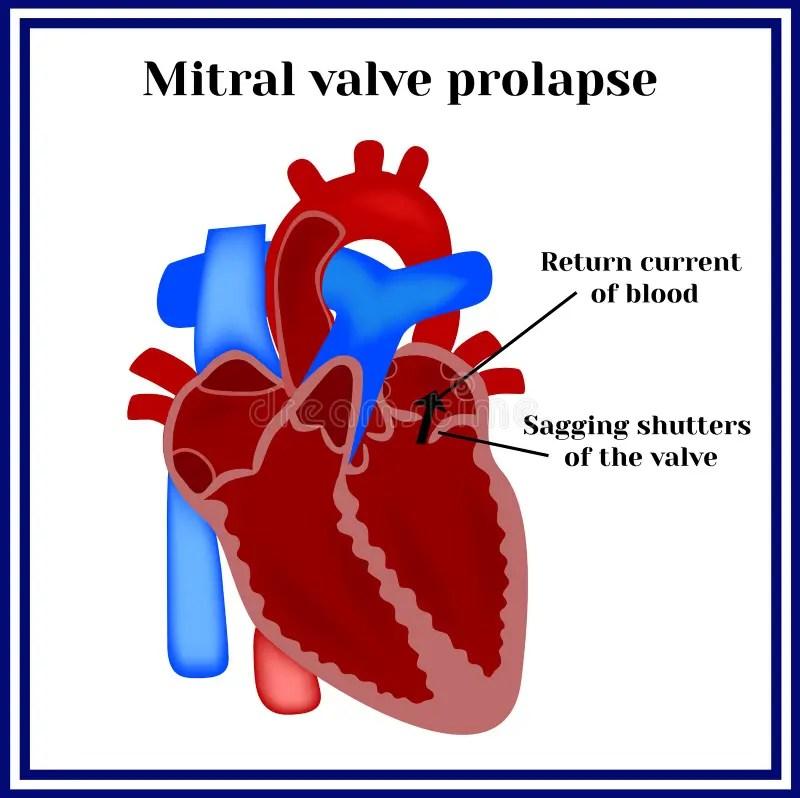 Prolapse Mitral Anatomy Valve