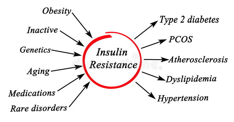 Insulin Resistance stock image. Image of causes, aging