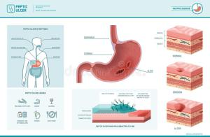 Peptic Ulcer And Helicobacter Pylori Infographic Stock