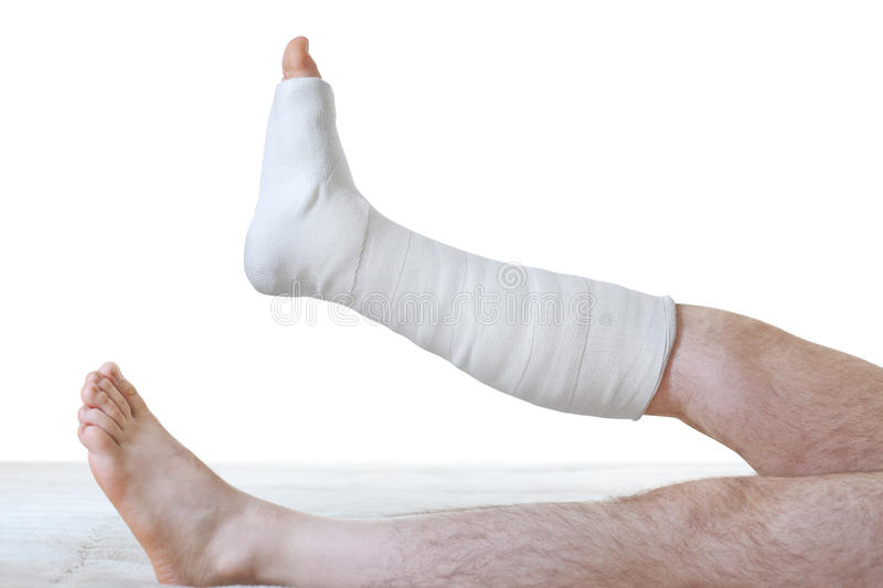 plaster leg stock images