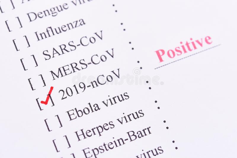 HIV positive test result stock image. Image of