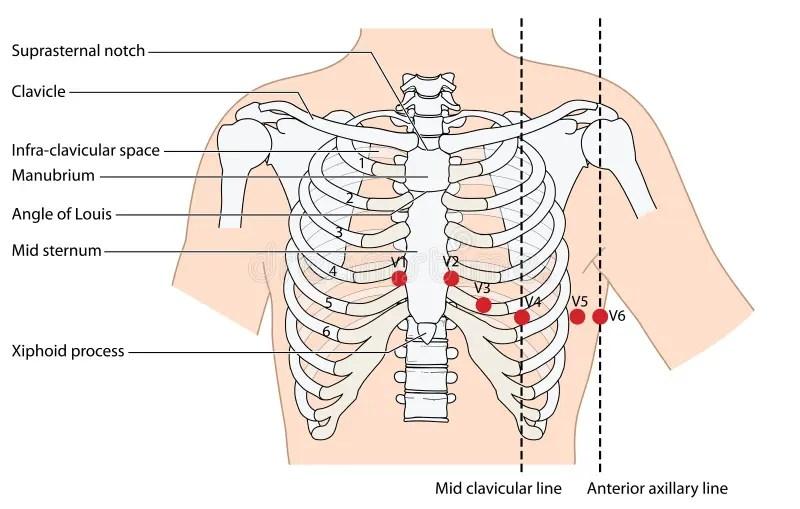 12 lead ekg placement diagram 2006 ford focus fuse panel posizione dei cavi del illustrazione vettoriale - immagine: 61193105