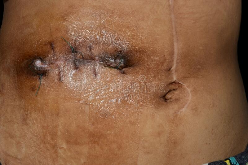 Untidy Kocher`s Incision Or Subcostal Or Oblique Incision ...