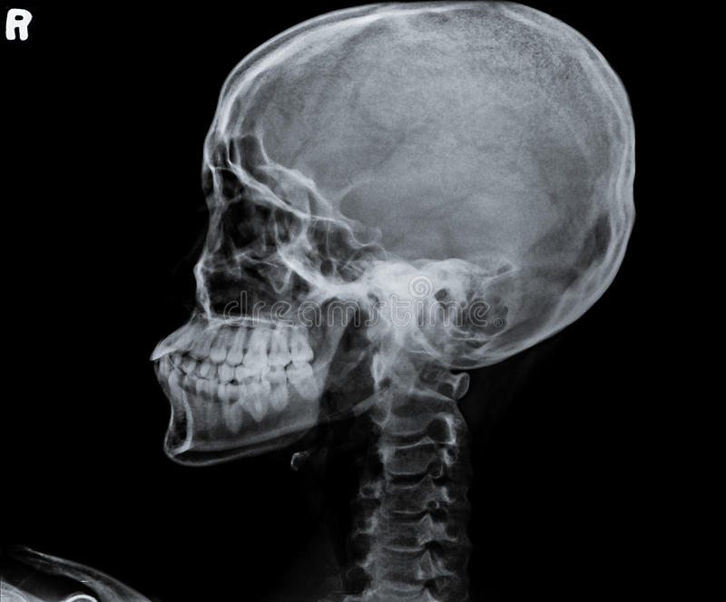 X Ray Of Side View Of Human Child Skull Stock Photo
