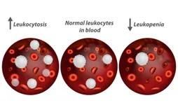 貧血 向量例證. 插畫 包括有 厭惡. 愛好健美者. 人力. 遺傳性. 血球細胞. 紊亂. 血紅素. 健康 - 47866321