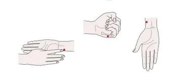 Point BL36 Chengfu, D'acuponcture De Dessin Illustration