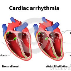 Cardiac Conduction System Diagram Blitz Turbo Timer Wiring Arrhythmia Cartoon Vector | Cartoondealer.com #64089813