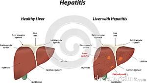 Hepatitis Stock Vector  Image: 45795881