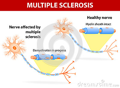 immune system diagram dragonfire active pickups wiring nerve affected by multiple sclerosis royalty free stock images - image: 35129869