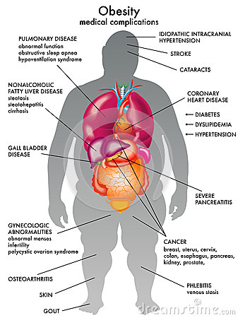 heart sounds diagram 2006 f150 ac wiring obesity stock images - image: 31542154