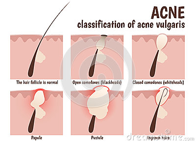structure of the hair follicle stock vector image