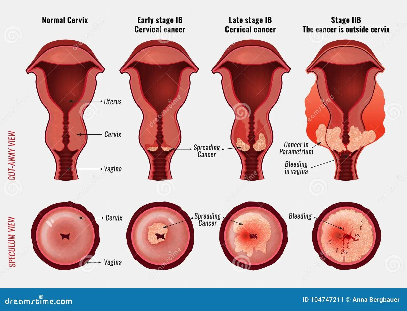 子宮頸癌圖象 向量例證. 插畫 包括有 貴族政府,子宮內膜異位癥_紡織網