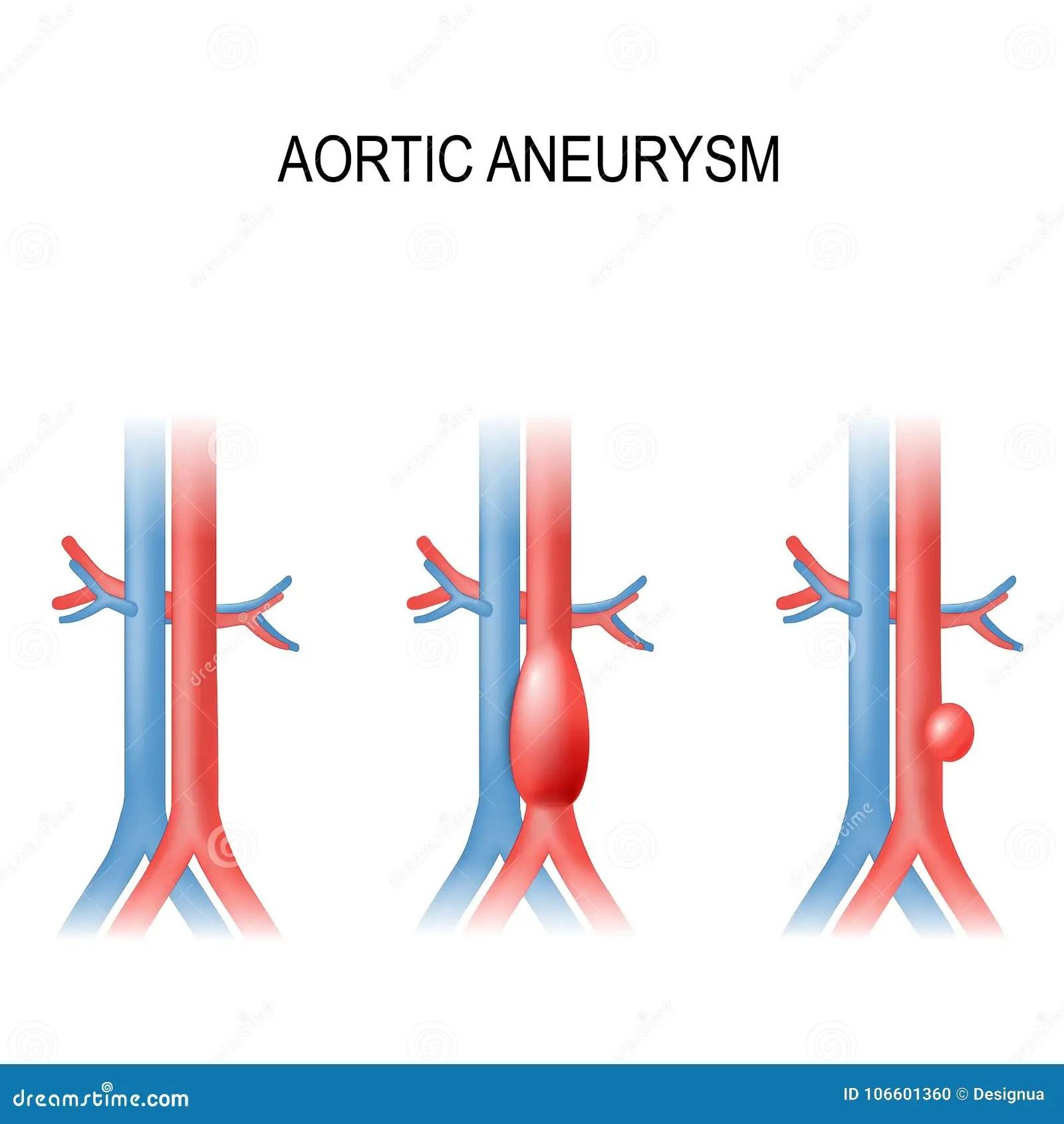 abdominal aorta diagram dual radio wiring aneurysms cartoons illustrations and vector stock images