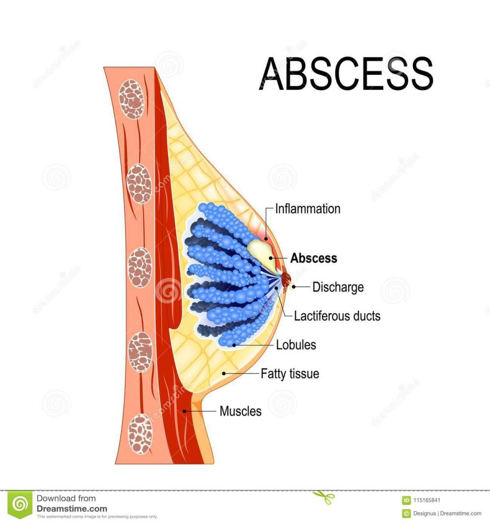 medium resolution of abscess cross section of the mammary gland with inflammation stock diagram of abscess