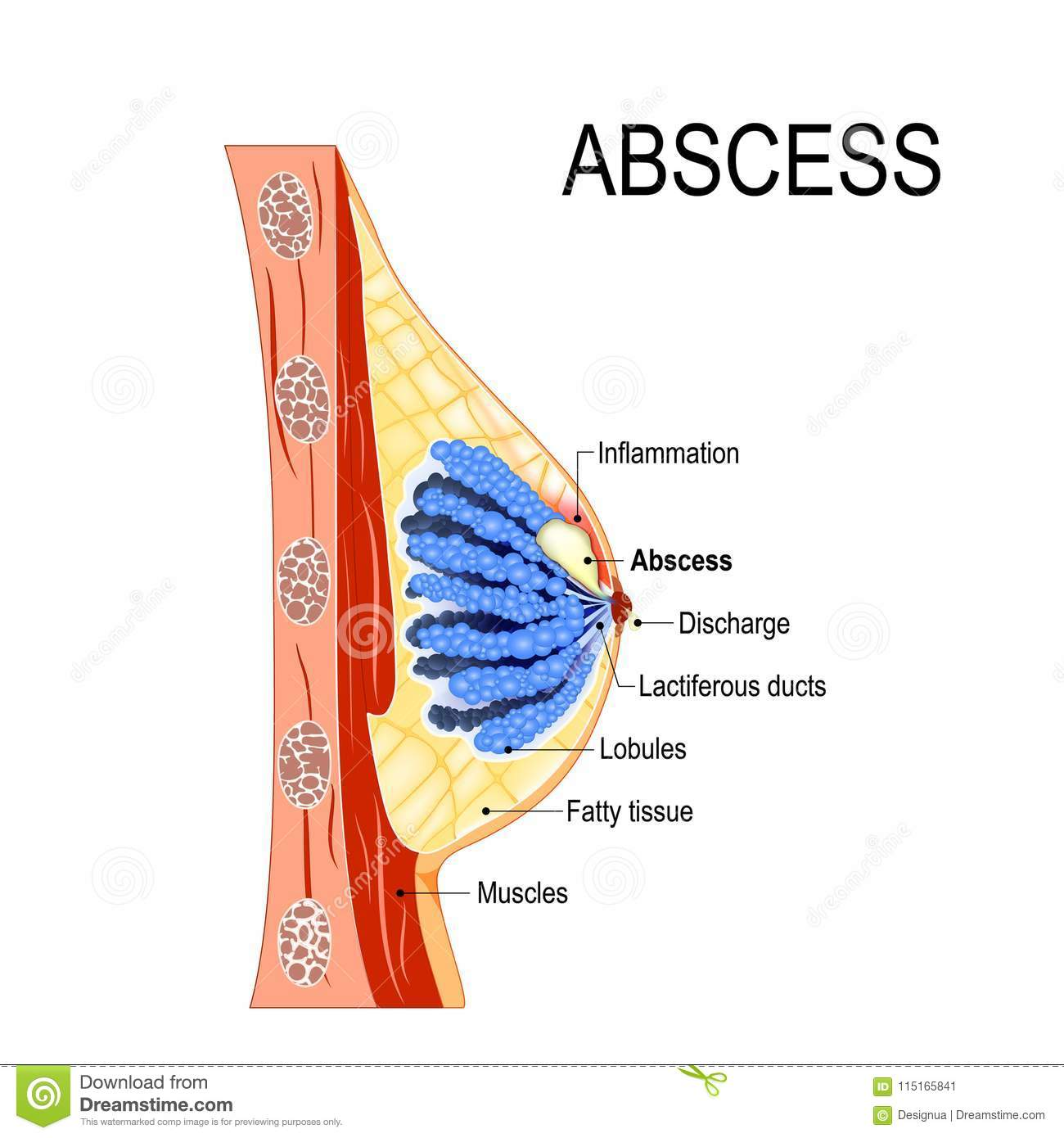 hight resolution of abscess cross section of the mammary gland with inflammation stock diagram of abscess
