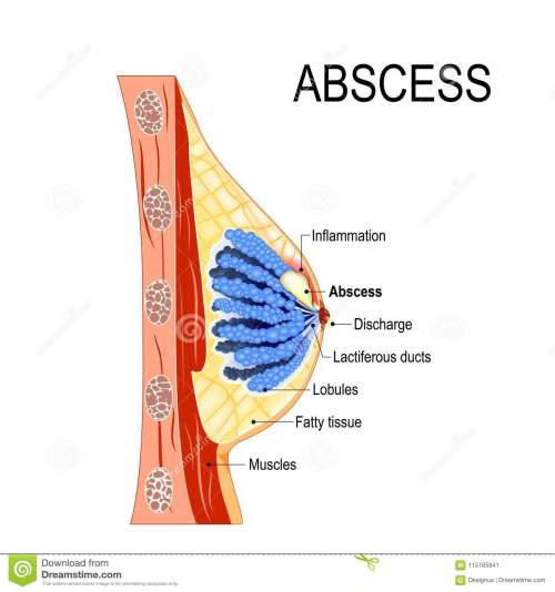 small resolution of abscess cross section of the mammary gland with inflammation stock diagram of abscess