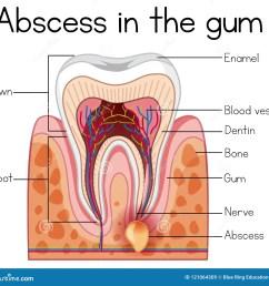 abscess in the gum diagram [ 1300 x 1206 Pixel ]