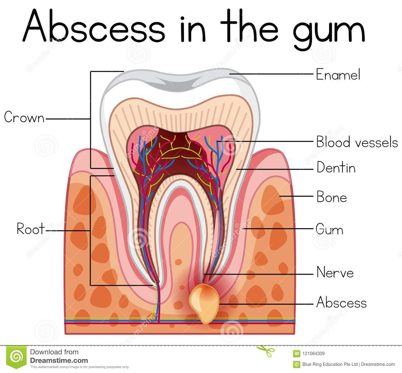 hight resolution of abscess in the gum diagram