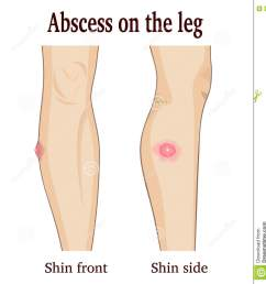 abscess on the leg image abscess on the leg from two perspectives royalty free illustration [ 1282 x 1300 Pixel ]