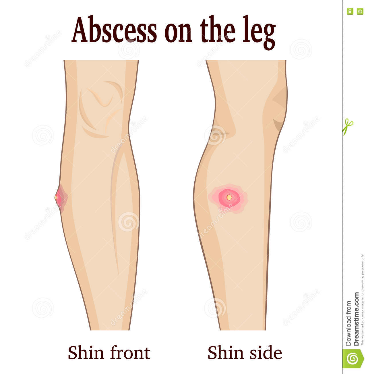 hight resolution of abscess on the leg image abscess on the leg from two perspectives royalty free illustration