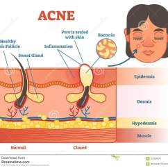 Hormonal Acne Diagram Hot Water System Thermostat Wiring Pimple Real All Data Illustration With Hair Skin Layers And
