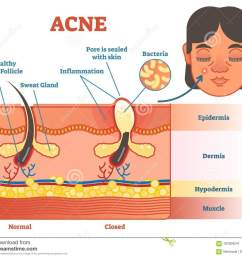 acne diagram illustration with hair pimple skin layers and structure female face alongside [ 1300 x 1126 Pixel ]