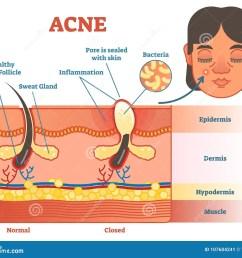 pimple diagram area wiring diagram database pimple inside skin pimple diagram area [ 1300 x 1126 Pixel ]