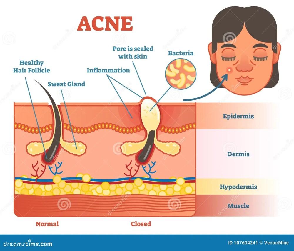 medium resolution of pimple diagram area wiring diagram database pimple inside skin pimple diagram area