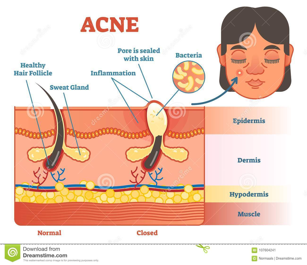 hight resolution of acne diagram illustration with hair pimple skin layers and structure female face alongside