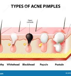 acne pimples [ 1300 x 1001 Pixel ]