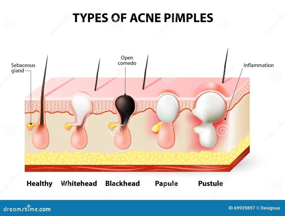 medium resolution of acne pimples