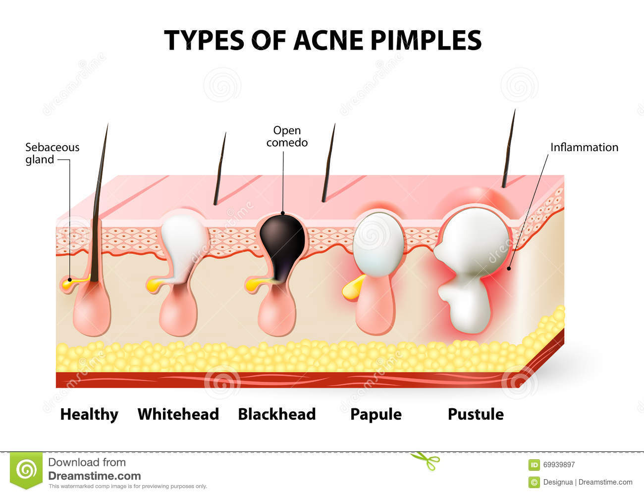 hight resolution of acne pimples
