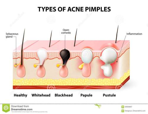 small resolution of acne pimples