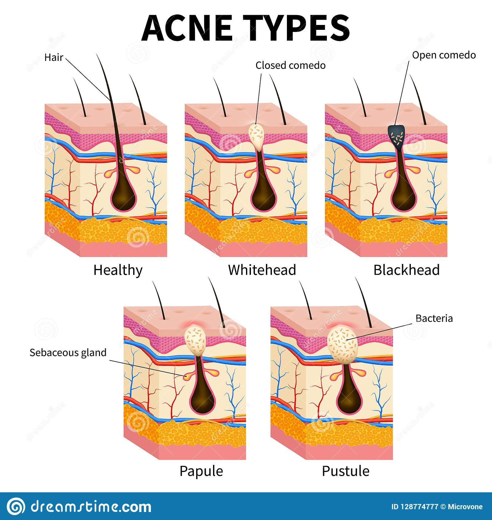 what causes acne diagram pir switch wiring skin topsimages
