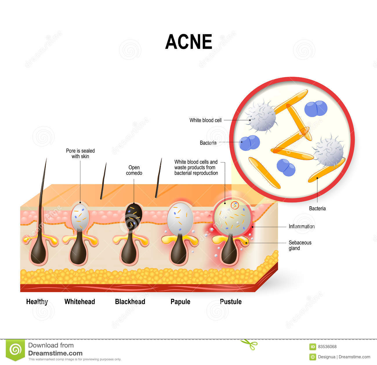 hight resolution of acne vulgaris or pimple