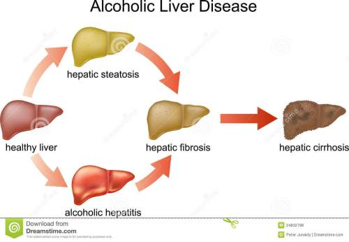 small resolution of diagram liver damage wiring diagram load alcoholic liver disease diagram