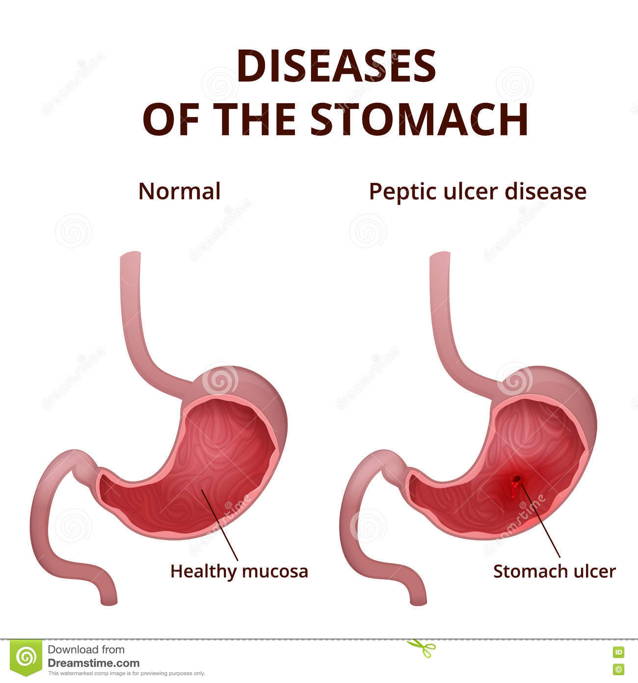 hight resolution of medical poster with a detailed diagram of the structure from the inside of the stomach digestive system diseases ulcer